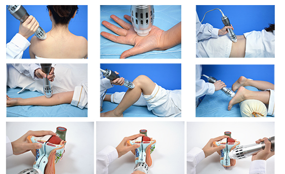 SW10S Portable Shockwave Therapy Machine For ED